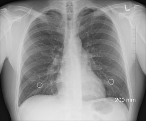 diagnosis-1476620_1920-1