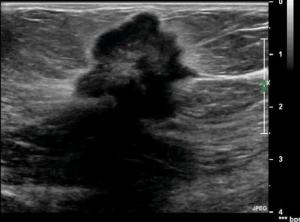 Can You Fake An Ultrasound In Real Time Redwood S